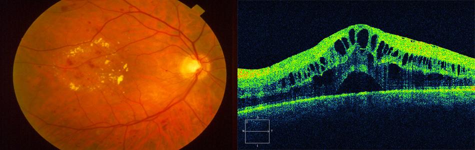 Resultado de imagen de edema macular diabético