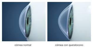 f6321d70b9 ... miópico irregular que en grados medios y avanzados es casi imposible de  corregir mediante gafas. Llegado a este punto las lentes de contacto ...