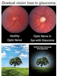 ceguera glaucoma