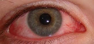 1cd34e436f Todas las lentes de contacto blandas, tiene un alto contenido en agua, por  tanto, al final del día pueden resecarse, sobretodo en trabajos donde el ojo  esté ...