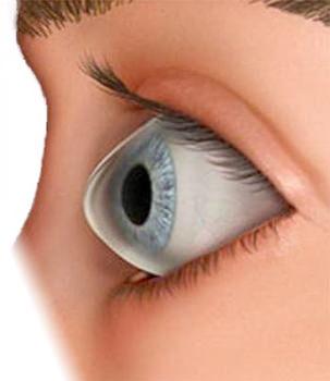 a3e46ba29d Pues recientemente un estudio publicado en la revista Eye & Contact Lens ha  tenido como objetivo determinar las características y los factores de  riesgo de ...