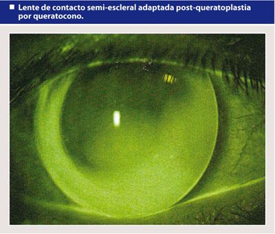 3d6252a661 Las Lentes Esclerales amplían las posibilidades de tratamiento de diversas  anormalidades corneales. La indicación principal es la corrección óptica de  una ...