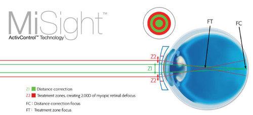 Misight-myopia-control