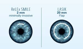 Resultados Visuales tras ReLEx SMILE y Femto-LASIK