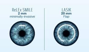 ReLEx SMILE: Resultados a largo plazo