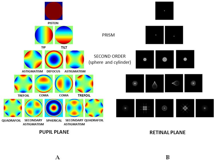 339813f61a Meta-análisis entre Lentes intraoculares monofocales esféricas vs asféricas  en la cirugía de cataratas: