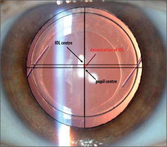 53f571d2a0 Lentes intraoculares monofocales esféricas vs asféricas: comportamiento  ante el desalineamiento