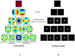 Lentes intraoculares monofocales esféricas vs asféricas: comportamiento ante eldesalineamiento