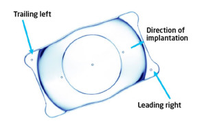 Fig-1-vision-implantable-collamer-lens