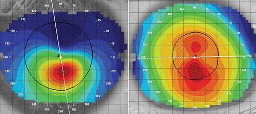 Eficacia del Cross-Linking en el Queratocono: Análisis de 4 Meta-análisis