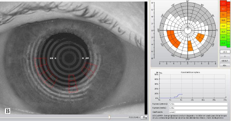 Cirugía Refractiva y Ojo Seco: la importancia del Estudio Preoperatorio