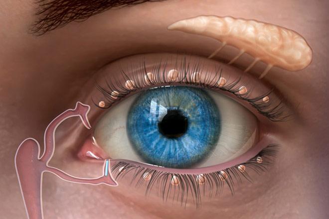 Cirugía Refractiva y Ojo Seco: Factores de Riesgo