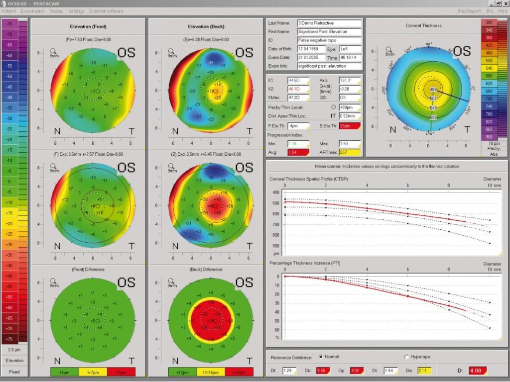 Cirugía Refractiva y Ectasia Corneal: la importancia del Estudio Preoperatorio 1