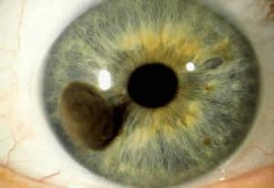 melanoma iris