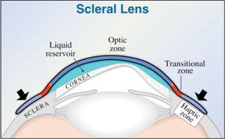 diagrama lente escleral