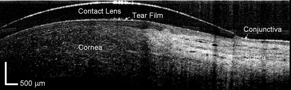 oct lente escleral