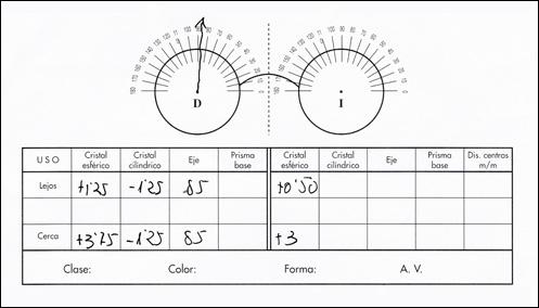 677f52882a Cómo interpretar una receta óptica