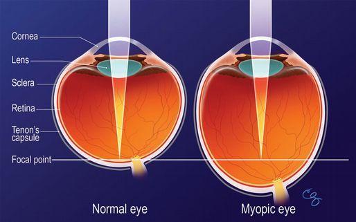 cum să îmbunătățiți vederea pentru 100