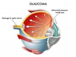 Glaucomas