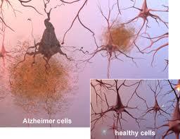 Alzheimer-celulas
