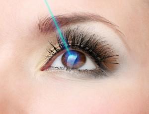 Cirugia laser