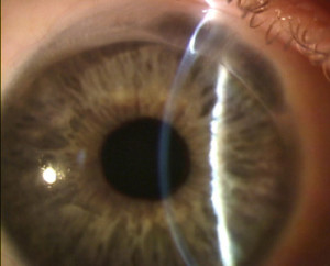 intracorneal cyst