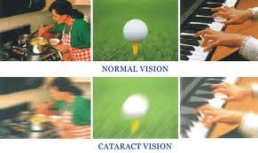 Qvision ¿Cuándo se tienen que operar las cataratas? vision catarata