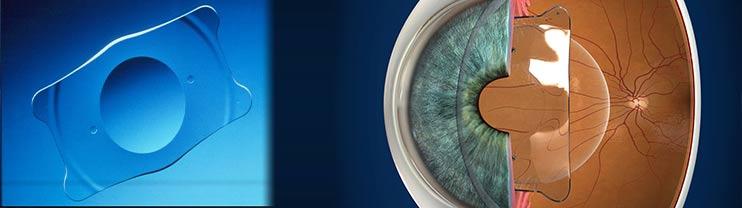 Seguridad de las lentes ICL: Revisión Sistemática y Meta-análisis