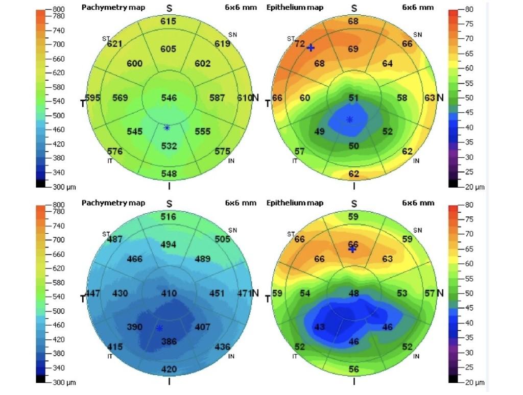 Cirugía Refractiva y Ectasia Corneal: la importancia del Estudio Preoperatorio 2