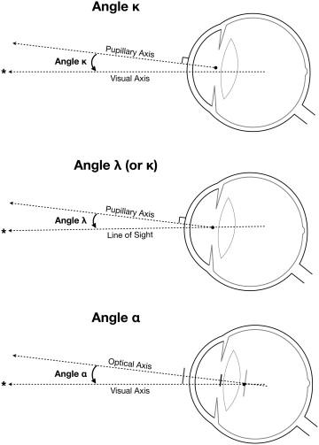 Fig 2-Angles