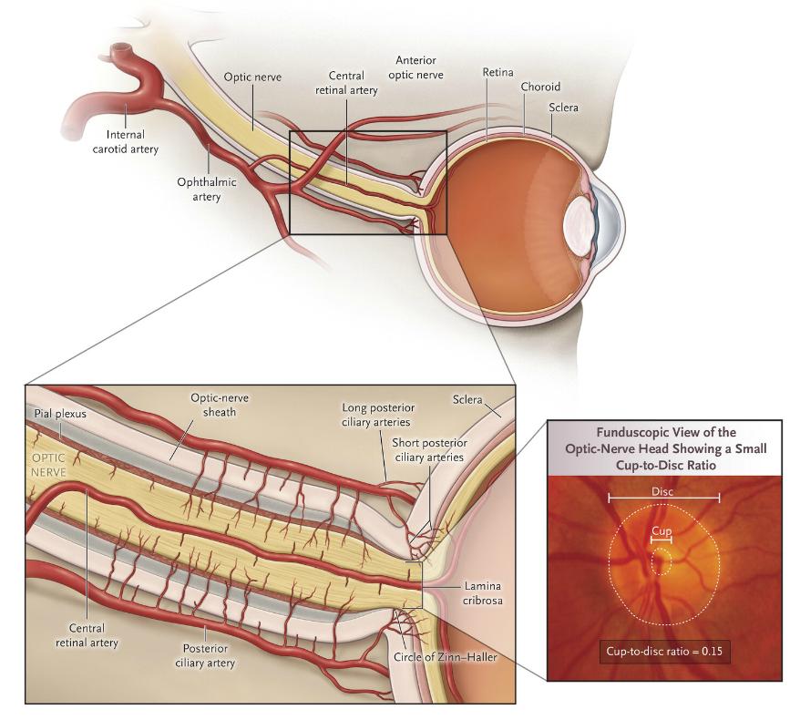 Punción lumbar presión ocular