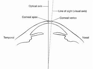 (1/7) ¿Es importante el Ángulo Kappa en Cirugía Refractiva, de Presbicia y Cataratas?: El Marco Teórico