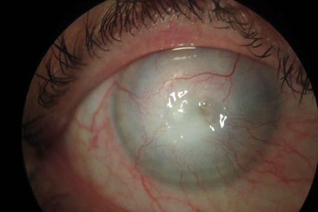 Infeccion por Acanthamoeba en usuarios de lentes de contacto