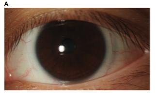Lentes de contacto multifocales: Efectos del Descentramiento