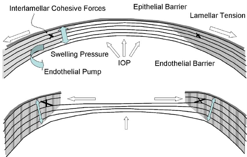 Cirugía Refractiva y Ectasia Corneal: Conceptos Generales Biomecánica Corneal