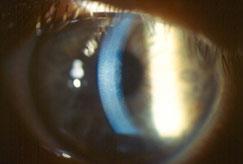 (1/2) Manejo de la descompensación corneal