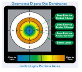 Corrección de la Presbicia, mediante lentes de contacto