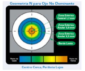 Qvision Corrección de la Presbicia, mediante lentes de contacto Imagen 31 1