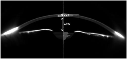 Resultado de imagen de central corneal thickness