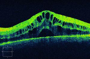 Resultado de imagen de macular edema treatment