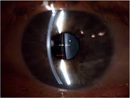 Qvision ICL: Vault mínimo en miopías elevadas images 37