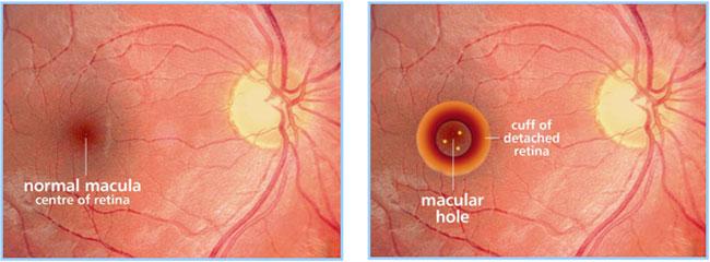 Resultado de imagen de macular hole induced retinal detachment