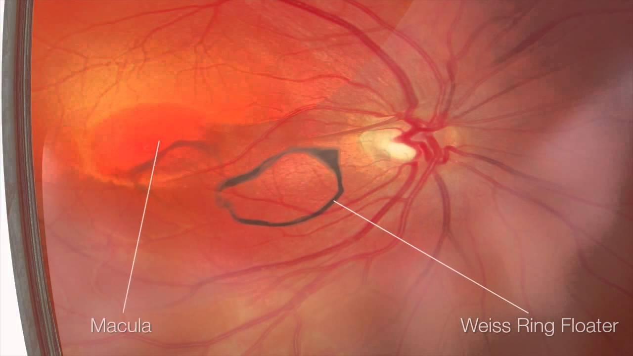 Resultado de imagen de vitreolisis
