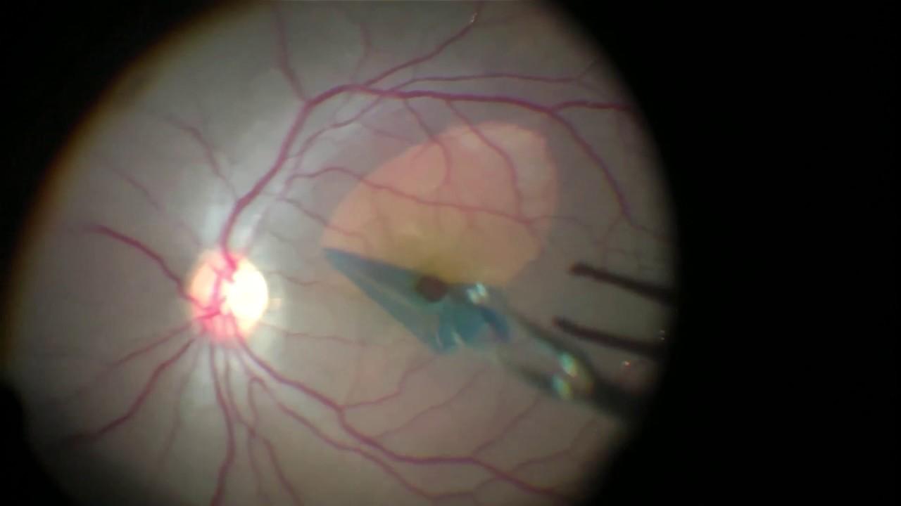 Resultado de imagen de inverted flap tecnique in macular hole