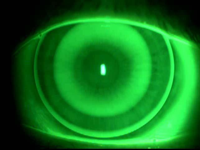 Ortoqueratologia nocturna, para corrección de Hipermetropía
